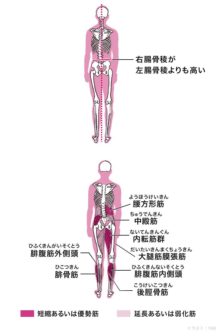 左 だけ 痛い 股関節
